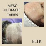 meso toning before after